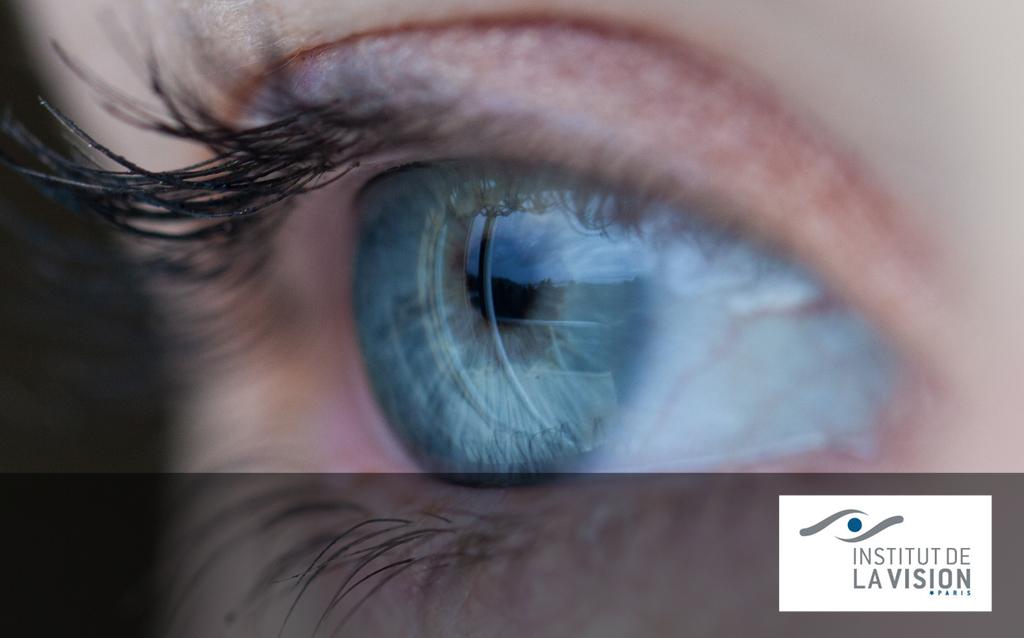 partenaire_vision