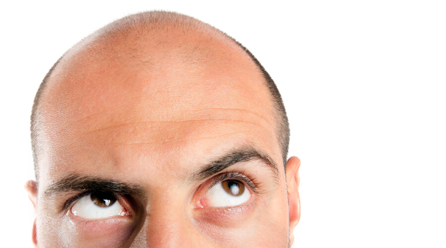 Cheveux : vers la fin de la calvitie ?