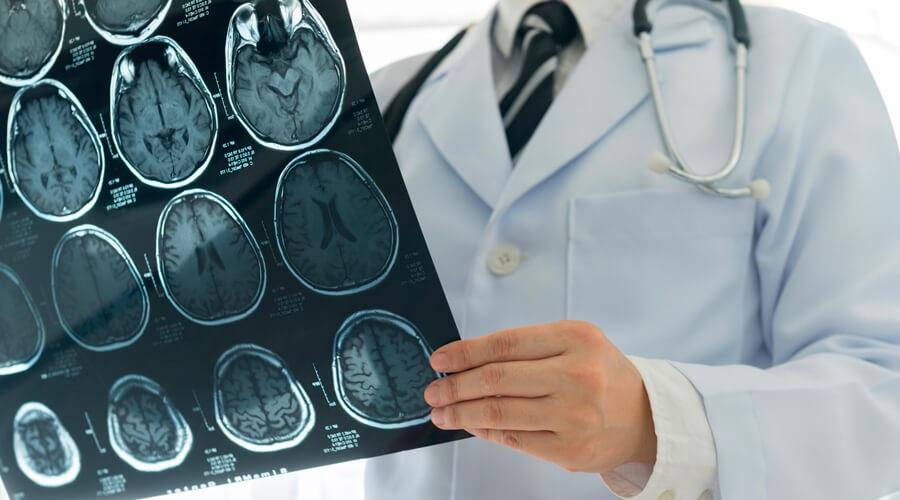 Cancer du cerveau : la recherche progresse