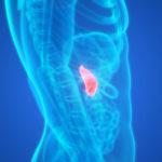 Une avancée face au cancer du pancréas